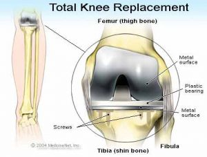 Total Knee Replacement at Livlife Hospitals